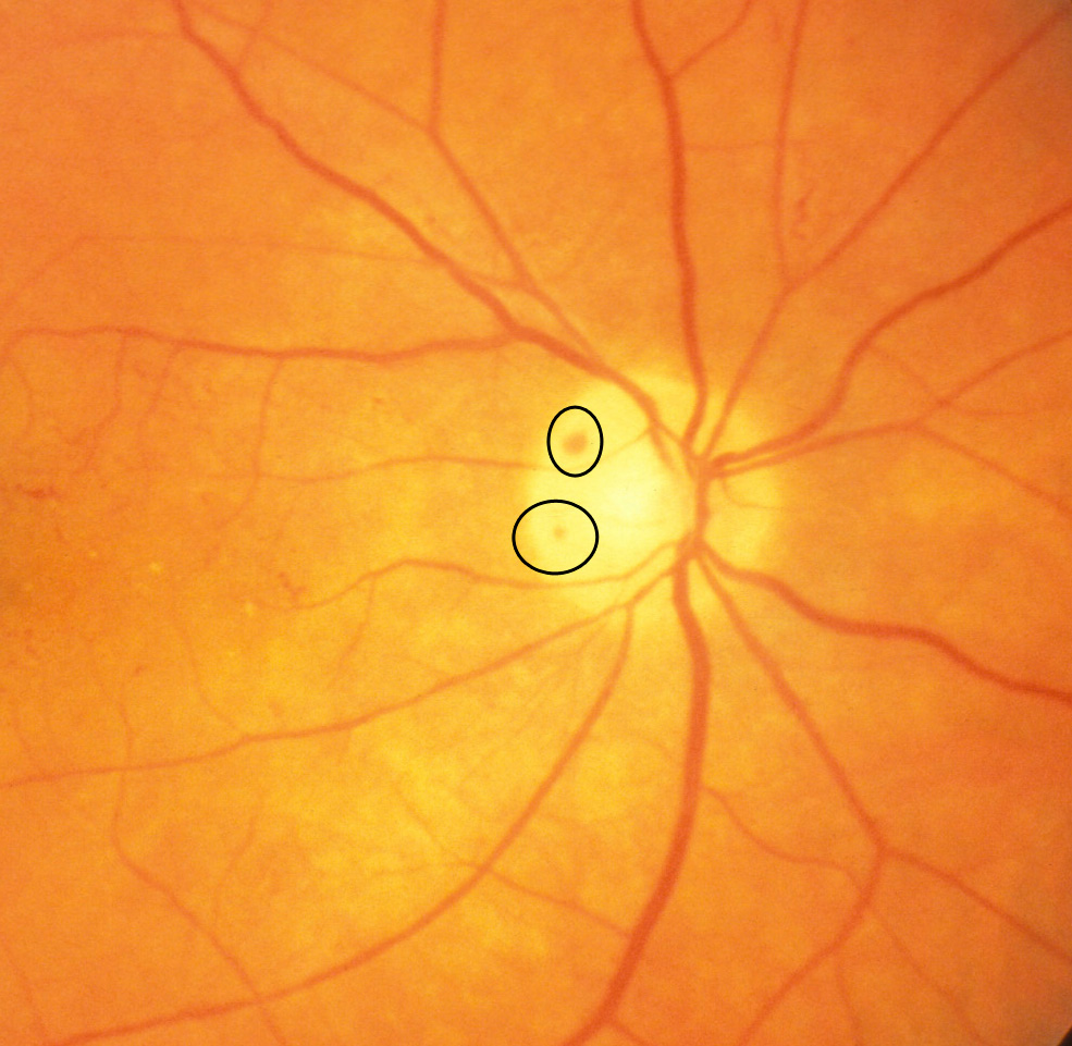 Image result for Optic disc haemorrhage
