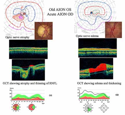Correlation of Optical Coherence Tomography and Retinal Angiography in ...