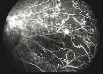 Treatment of macular edema due to retinal vein occlusions