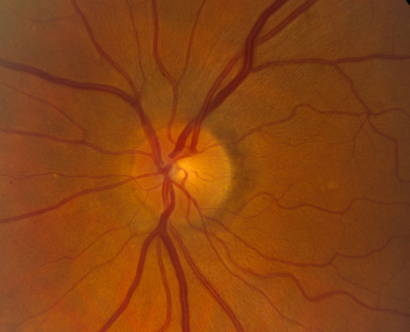 Image result for normal optic nerve vs papilledema