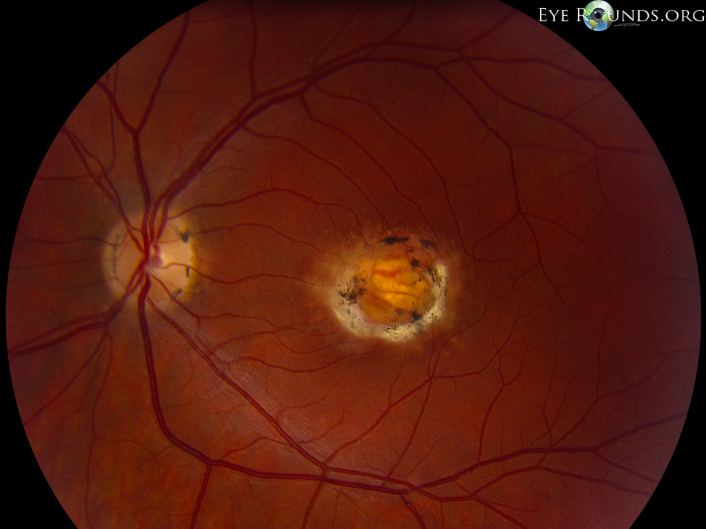 macular dystrophy retina - photo #14