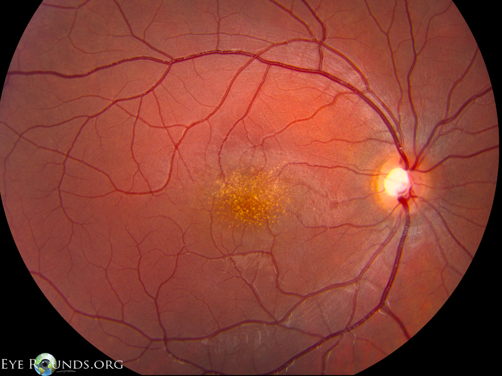 macular dystrophy retina - photo #5