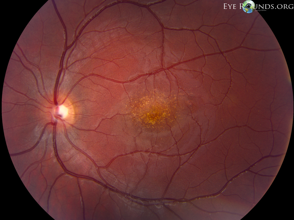 macular dystrophy retina - photo #11