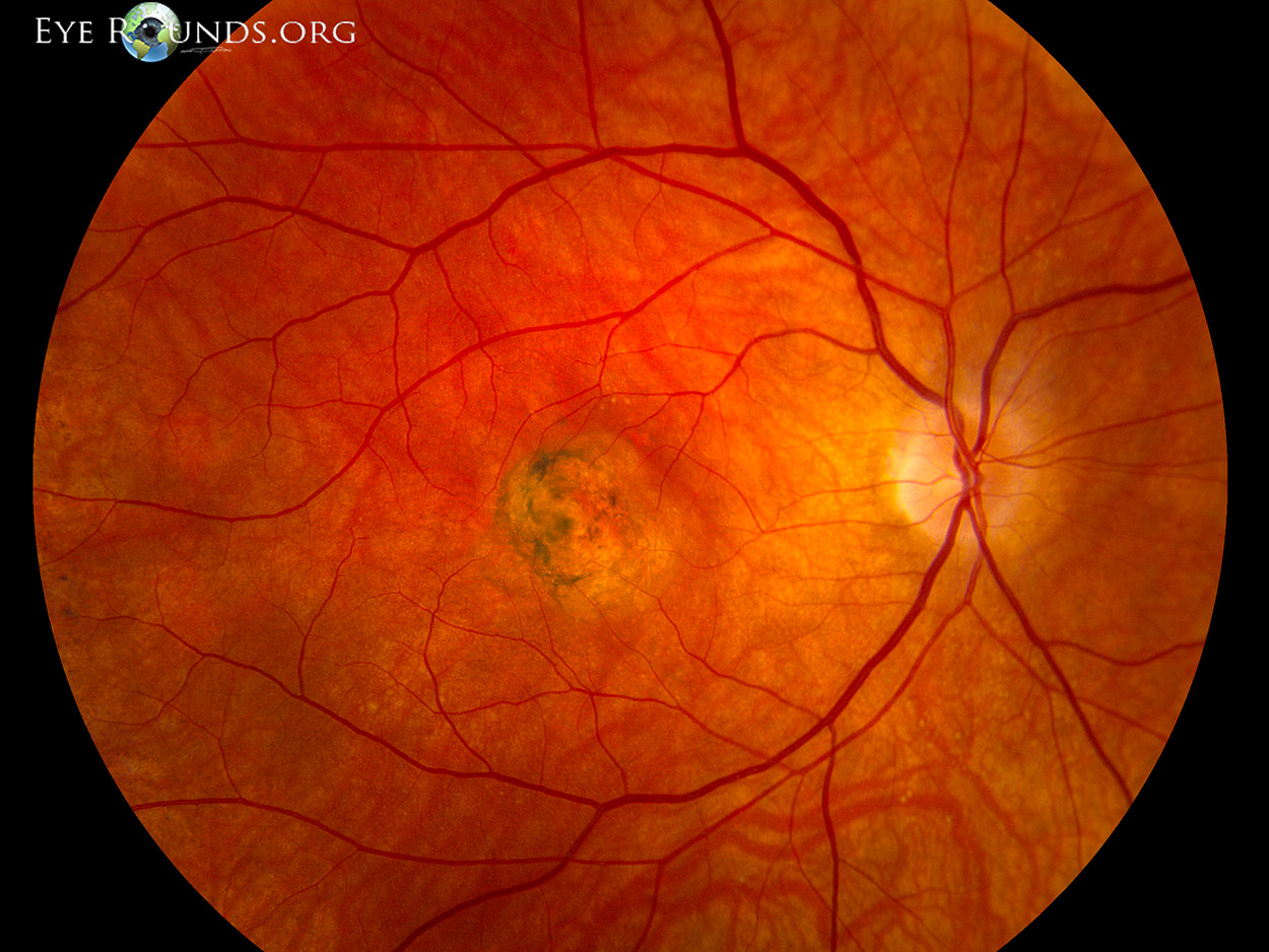 macular dystrophy retina - photo #17