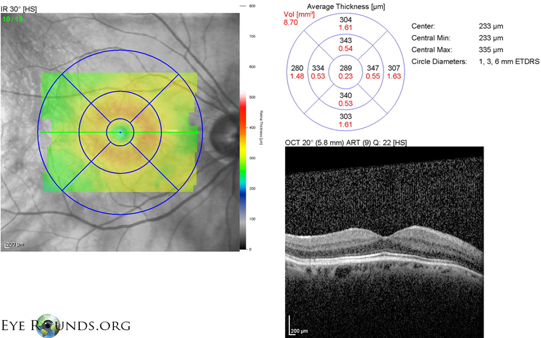 Rhegmatogenous Retinal Detachment, Macula-Off: The ...