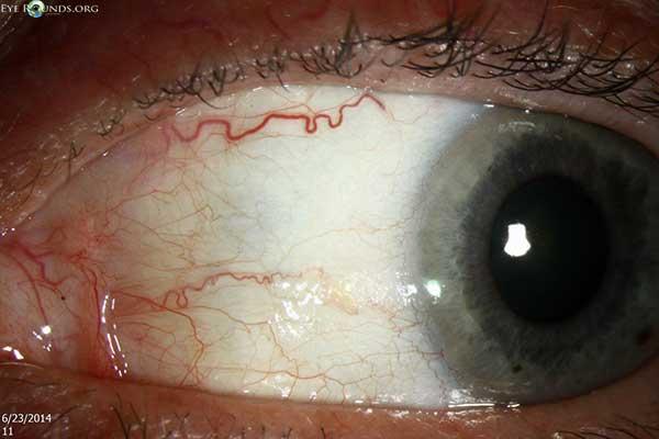 bitot u0026 39 s spot  online atlas of ophthalmology  the