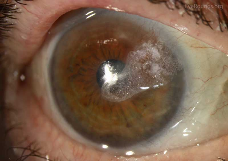 cyanoacrylate adhesive for corneal perforation secondary