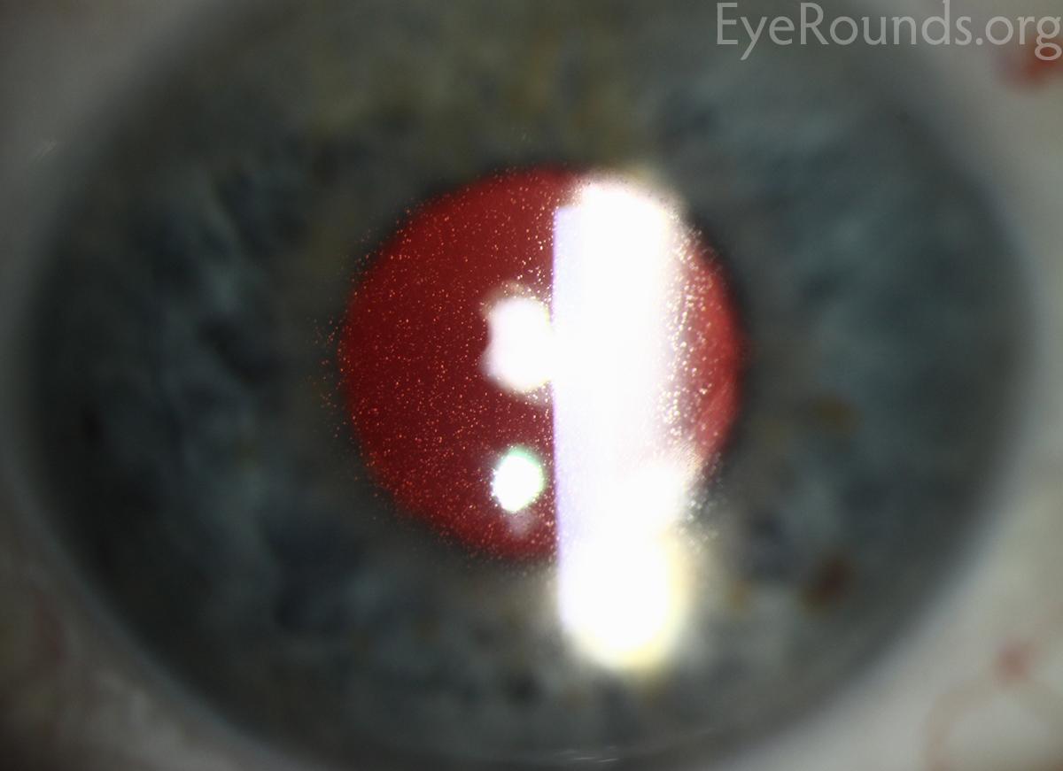 meesmann epithelial corneal dystrophy