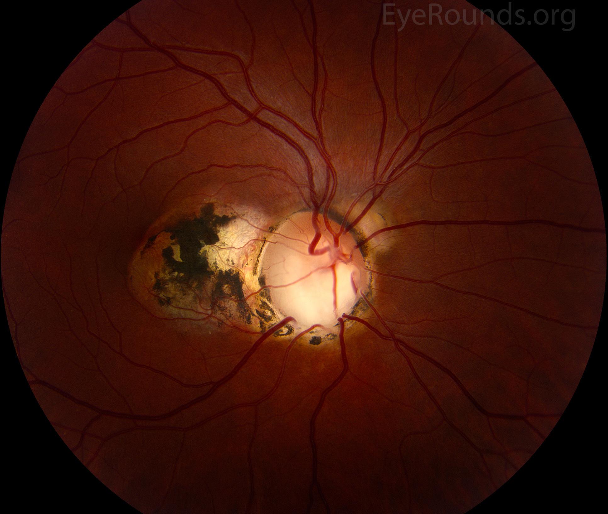 optic nerve coloboma with peripapillary choroidal