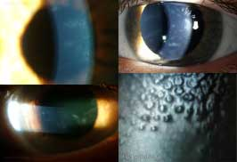 Corneal Hydrops New Items EyeRounds.or...