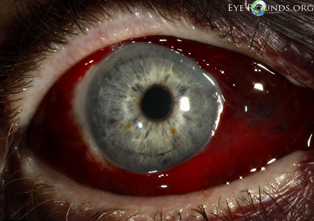 subconjunctival hemorrhages, also known as hyposphagma, occur when, Skeleton