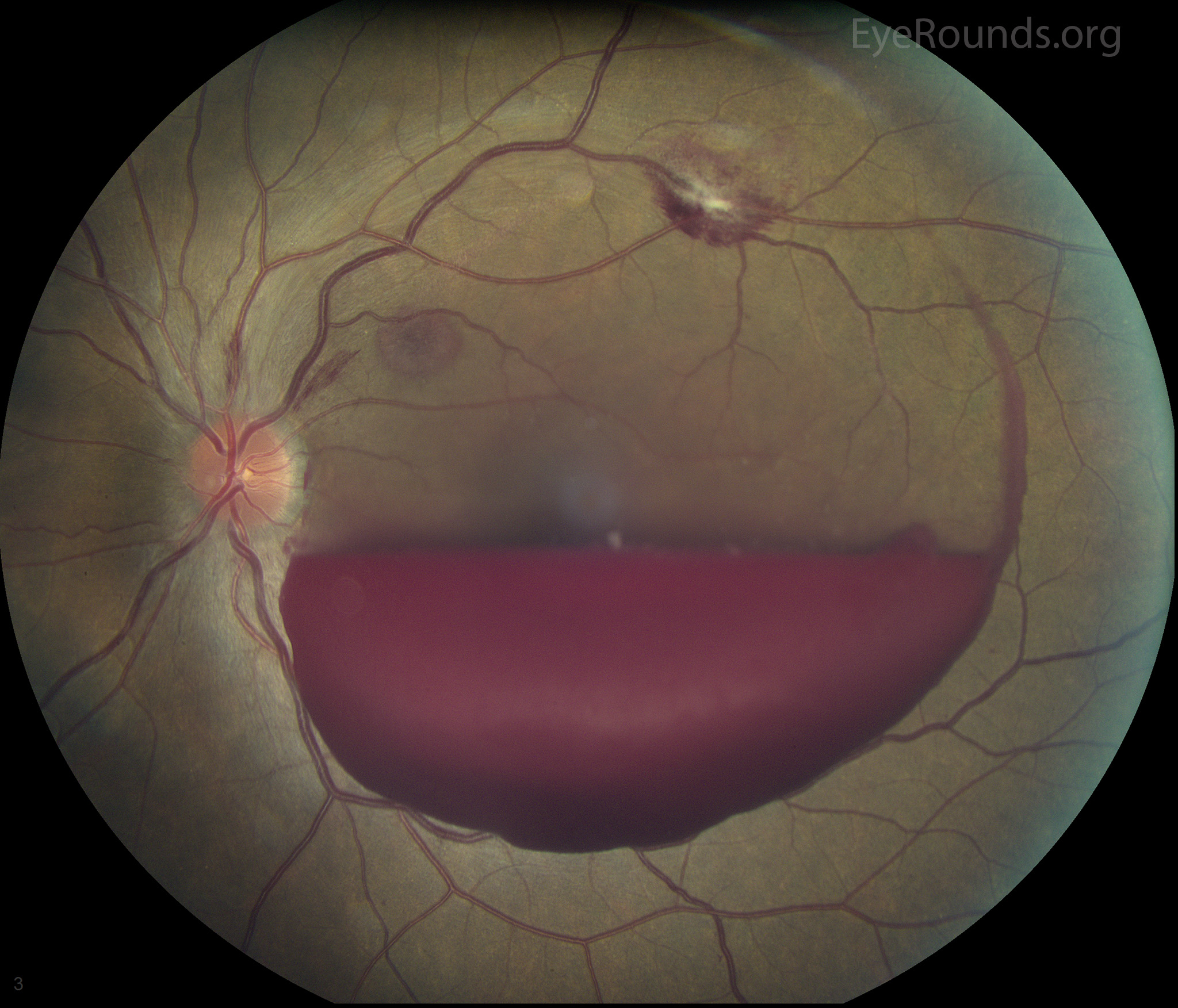 Image Result For After Cataract Surgery