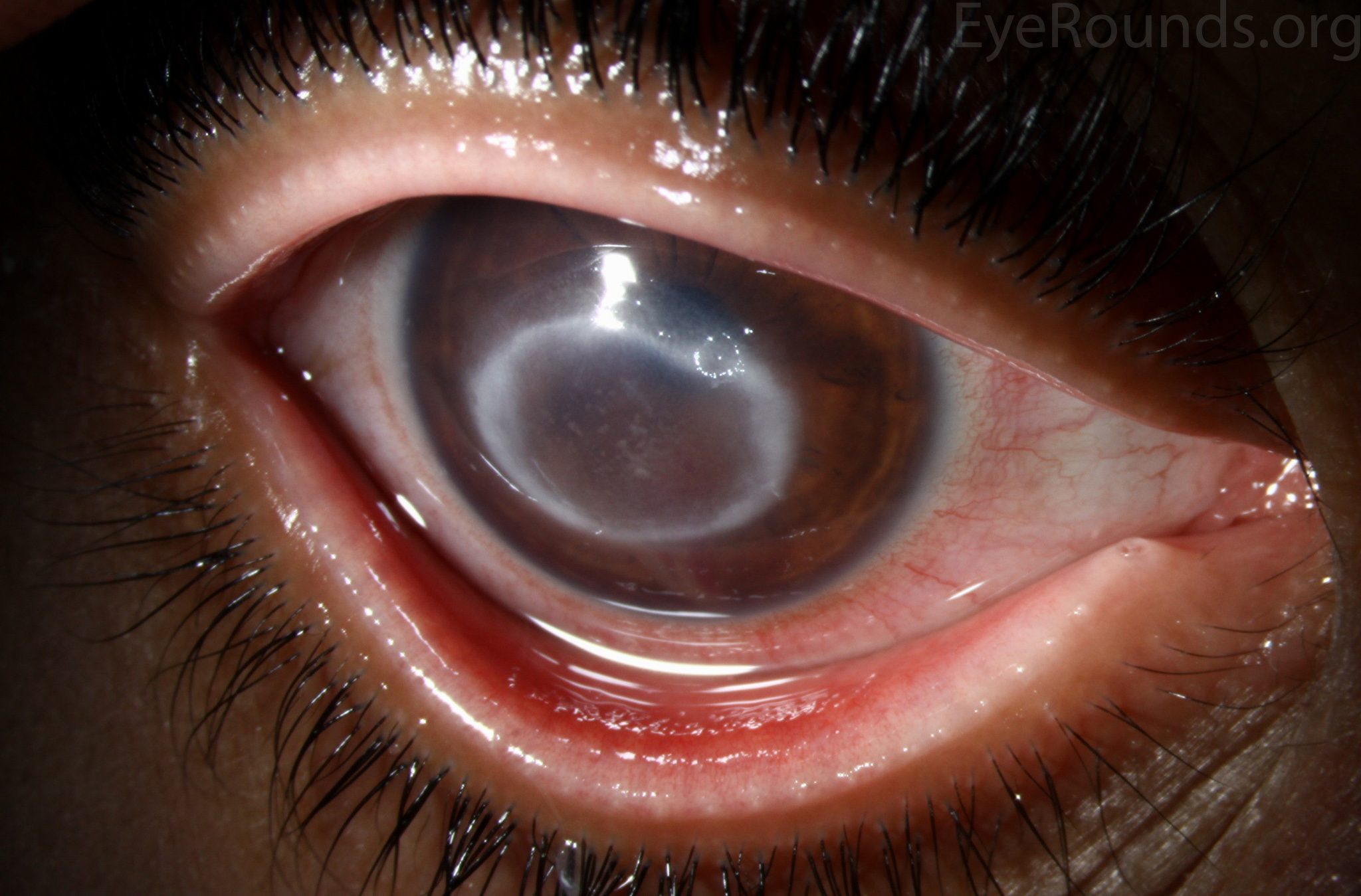 health acanthamoeba keratitis from contact lenses