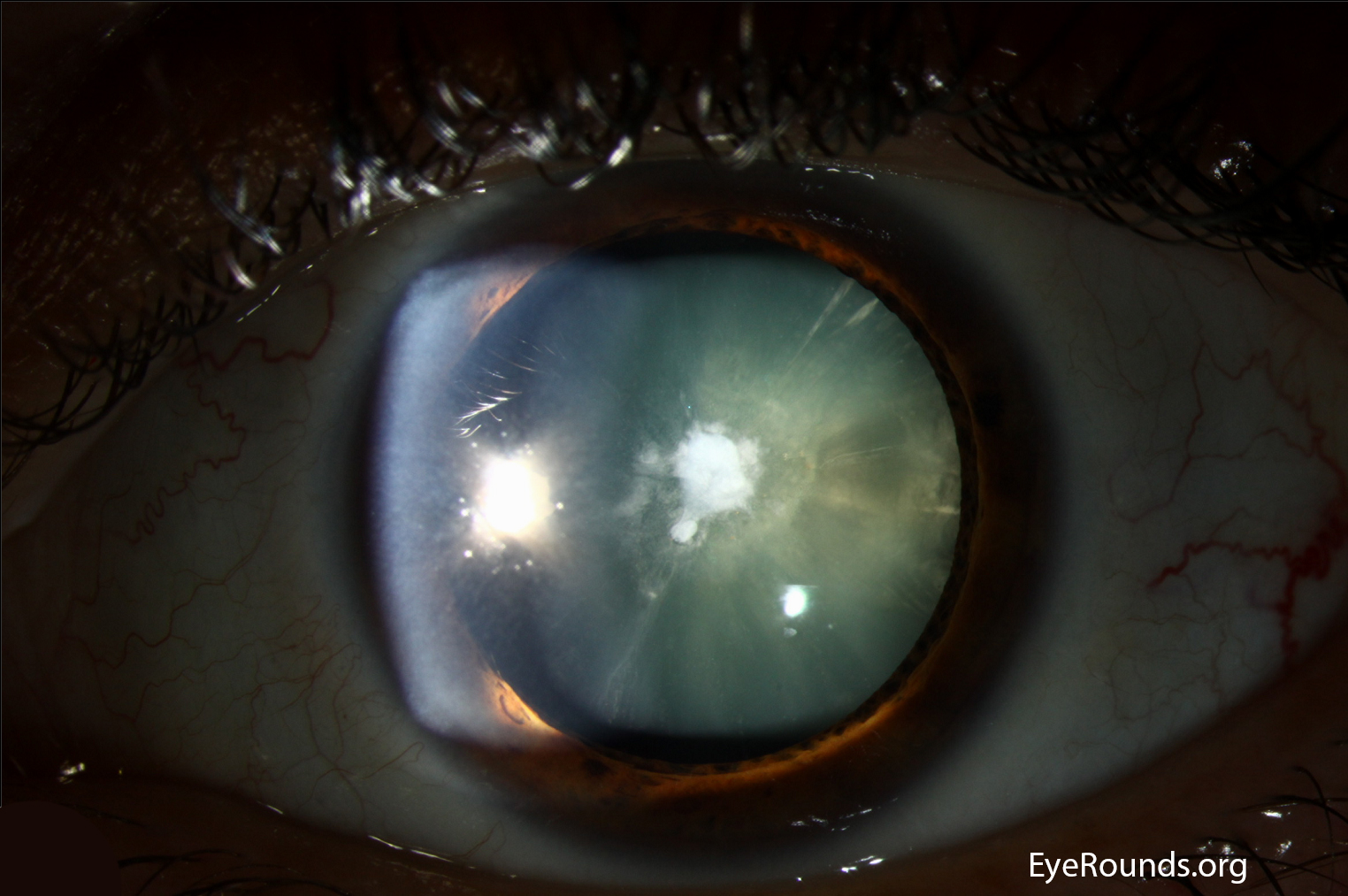 cataracts images #11