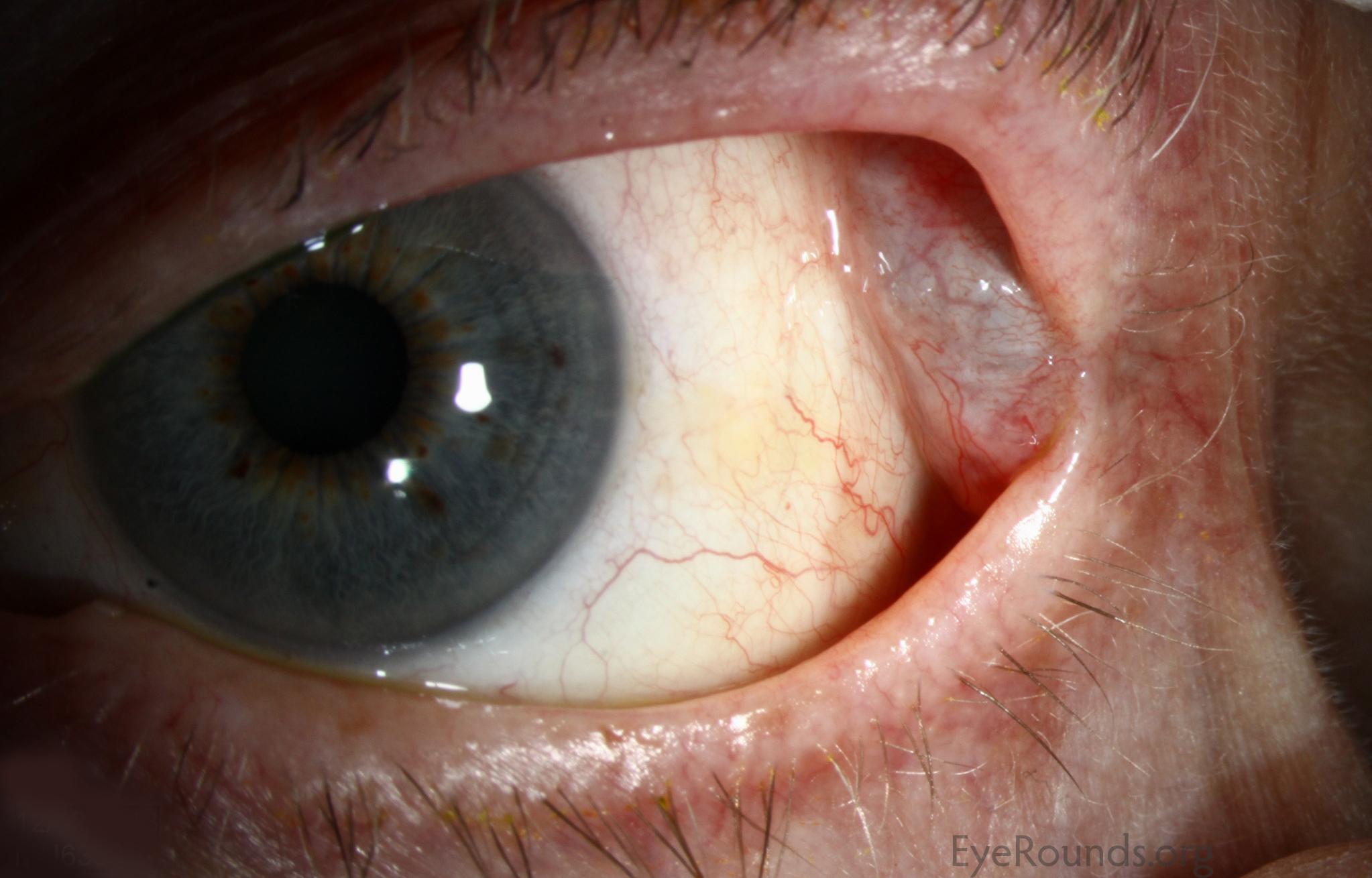 Lacrimal gland dacryops