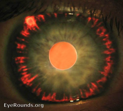 Pigment dispersion syndrome / glaucoma. EyeRounds.org ...