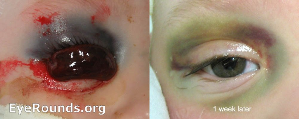 Bullous Subconjunctival Hemorrhage From Orbital Roof