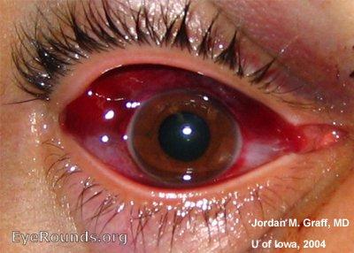 subconjunctival hemorrhage. eyerounds: online ophthalmic atlas, Skeleton