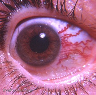 Sturge-Weber Syndrome: a bulbar manifestation. EyeRounds ...