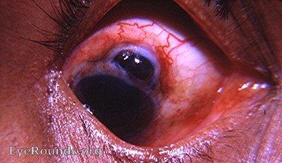 Post Operative Cataract Complications Eyeroundsorg Online