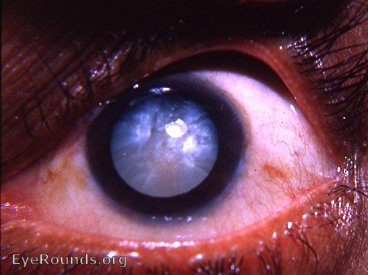 Intumescent Cataract Eyerounds Org Online Ophthalmic Atlas