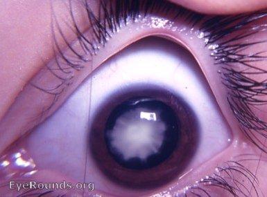 Zonular cataract/ lame...