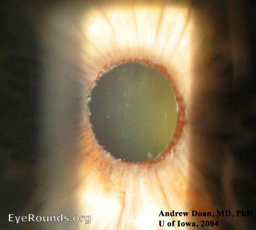 Pseudoexfoliation glaucoma. EyeRounds.org: Online Ophthalmic Atlas