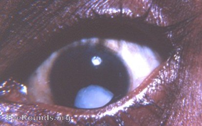Subluxated Cataract Eyerounds Org Online Ophthalmic Atlas