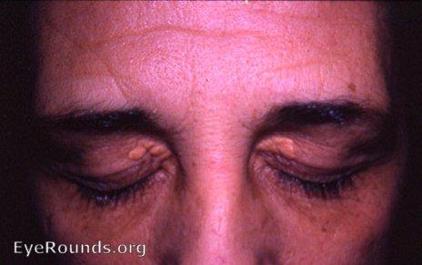 Xanthoma palpebrarum. EyeRounds.org: Online Ophthalmic Atlas