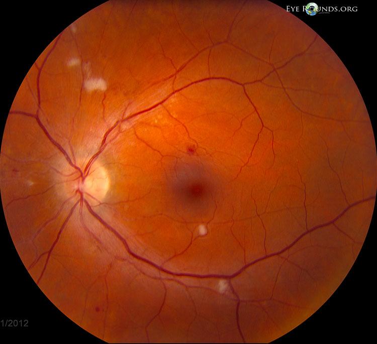 retinopathy