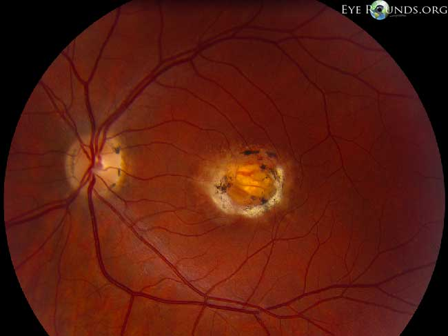 ophthalmologist albuquerque nm high country macula - 650×487