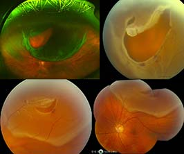 New Items EyeRounds.org: Online Ophthalmic Atlas