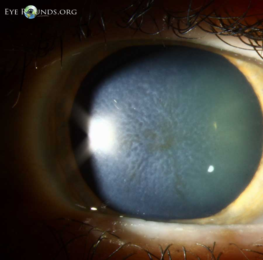 map dot fingerprint dystrophy with Reis Bucklers on 2664622 additionally Eye Conditions in addition Watch together with Reis Bucklers furthermore 78 EBMD Treatment.