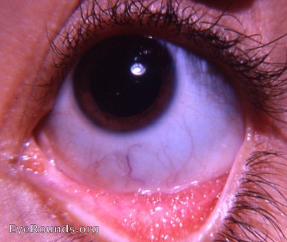 Allergic Conjunctivitis In Dogs Home Remedies