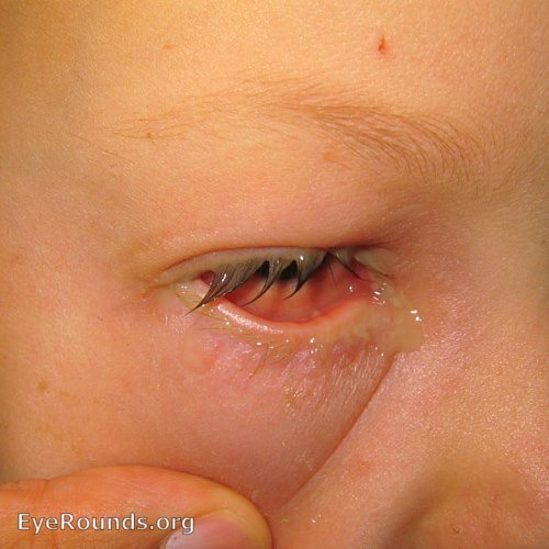 bacterial conjunctivitis. EyeRounds.org: Online Ophthalmic Atlas