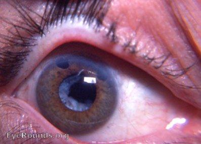 Aftercataract Secondary Cataract Following Needling