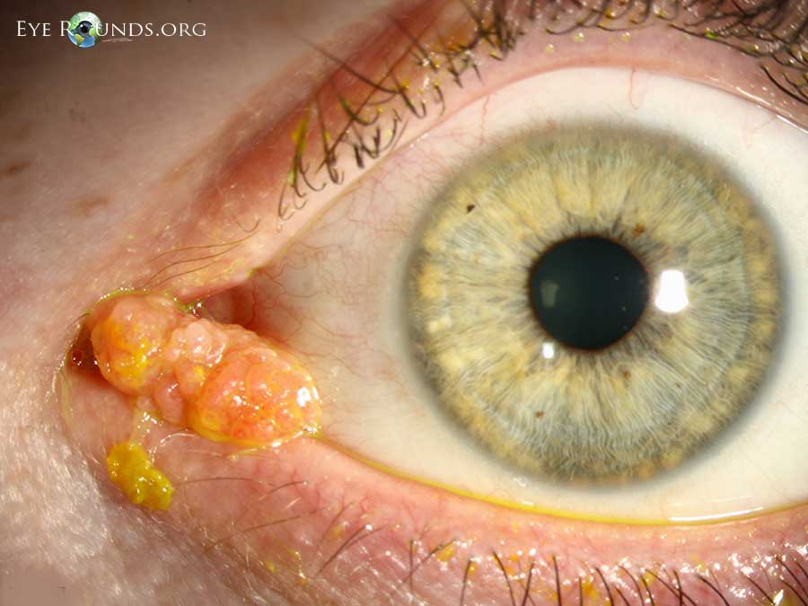 CONJUNCTIVAL PAPILLOMA PDF DOWNLOAD