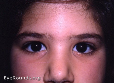 Epicanthal folds. EyeRounds.org: Online Ophthalmic Atlas