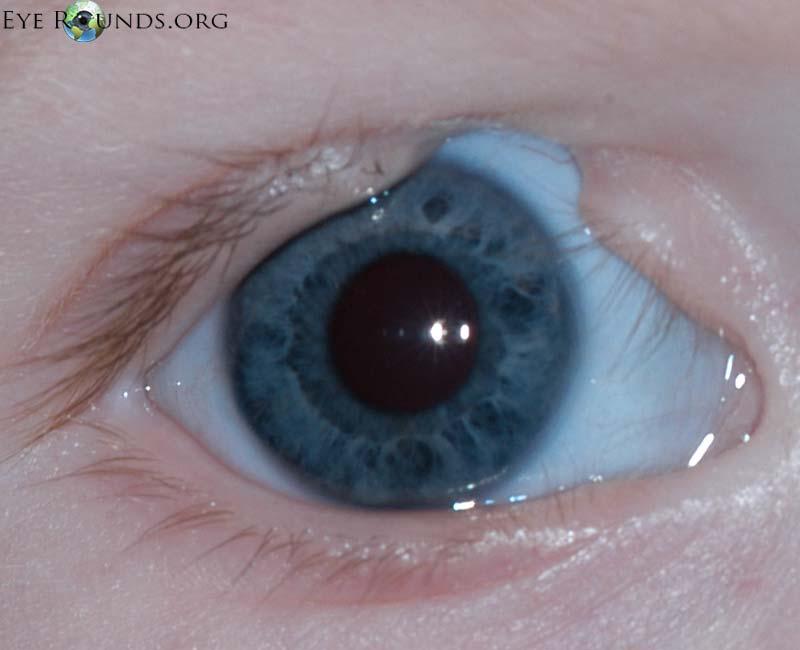 eyelid coloboma :: the university of iowa, ophthalmology, Skeleton