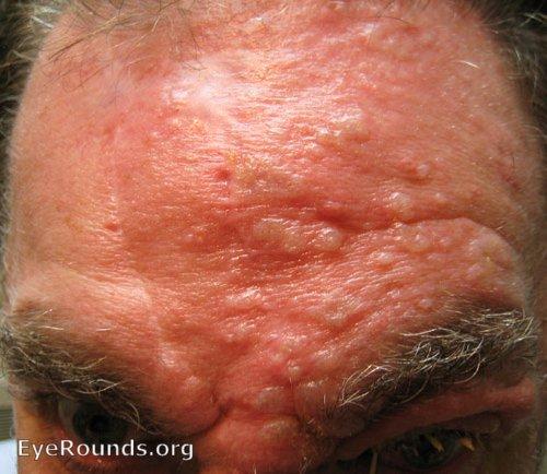 Forehead Rash - Causes - Healthgrades