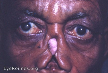 Syphilis and trachoma: tertiary syphilis with gumma distruction of nose;
