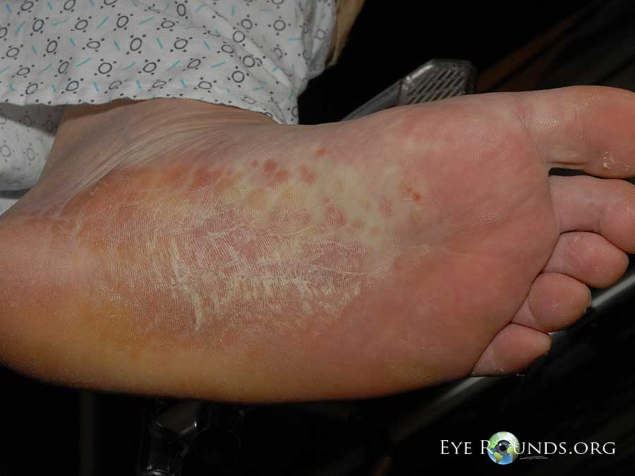 Itchy palms or soles of feet – is this a sign of an allergy?