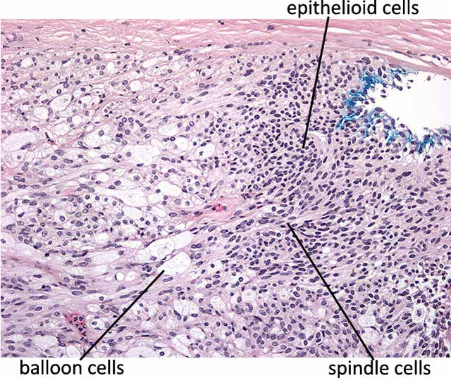 Iris-Ciliary Melanoma photos Figure7-smaller.jpg