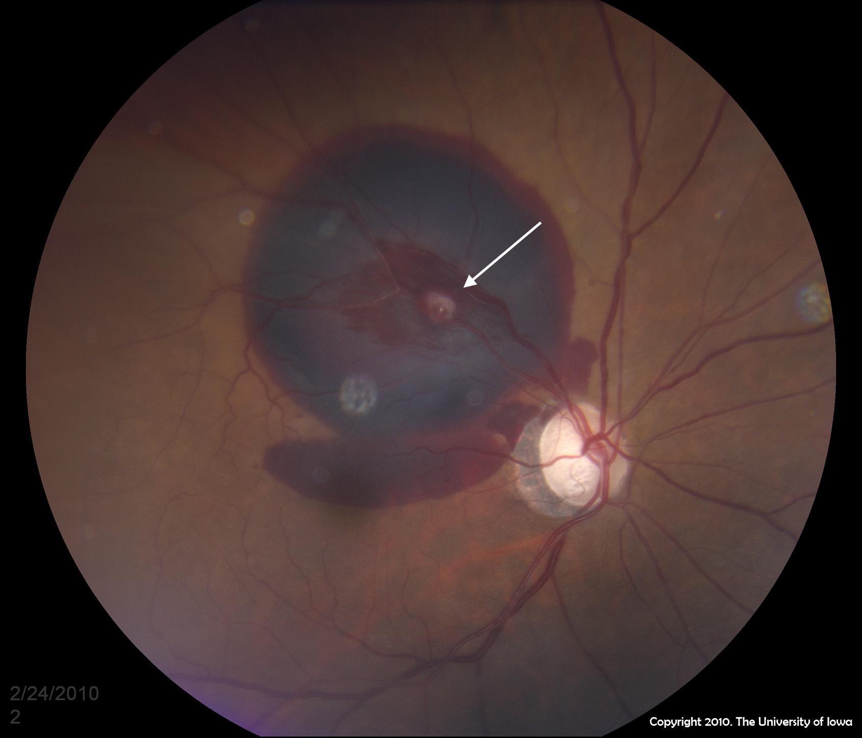 Macular Hole Stage II - Atypical Birdshot Chorioretinitis and ...