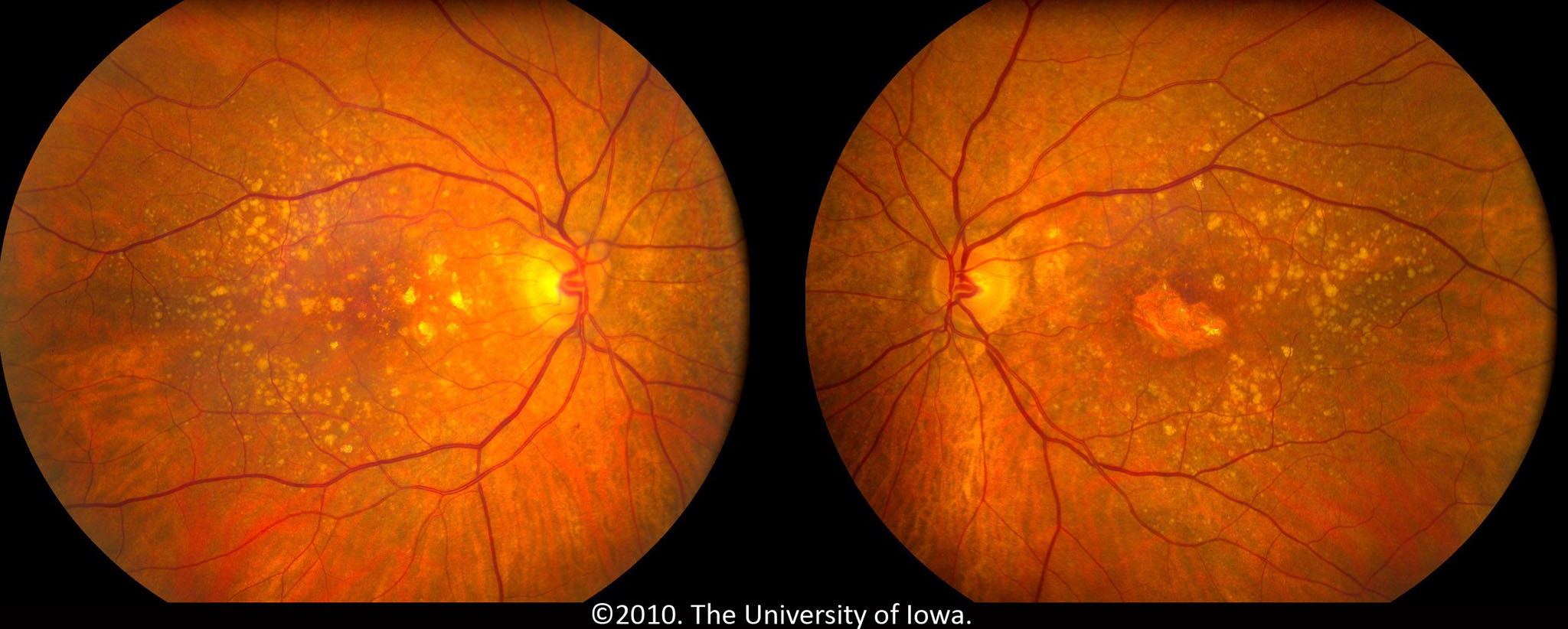 Age-related Macular Degeneration: Progression from Atrophic to ...