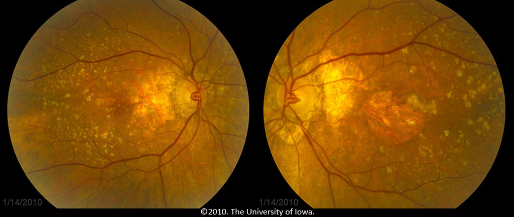 Age Related Macular Degeneration Progression From Atrophic To Proliferative Eyerounds Org Ophthalmology The University Of Iowa