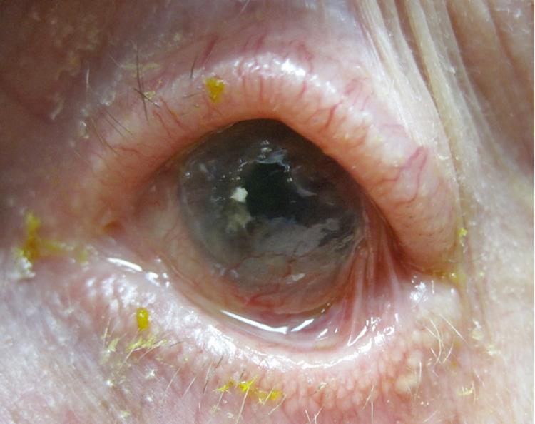 Ocular cicatricial pemphigoid atypical presentation for Fishing eye syndrome