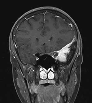 Meningiomas case with photos fig5b0sm.jpg