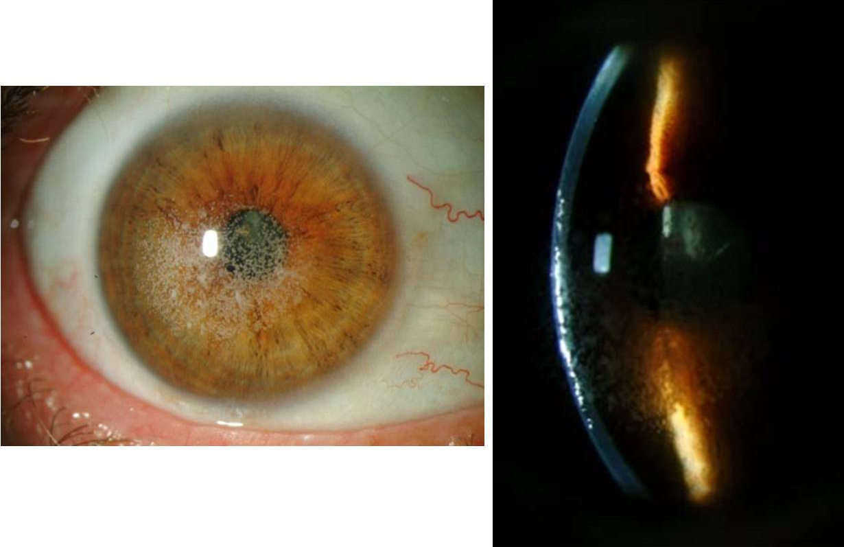 Fleck Corneal Dystrophy Slit lamp photos of right eye
