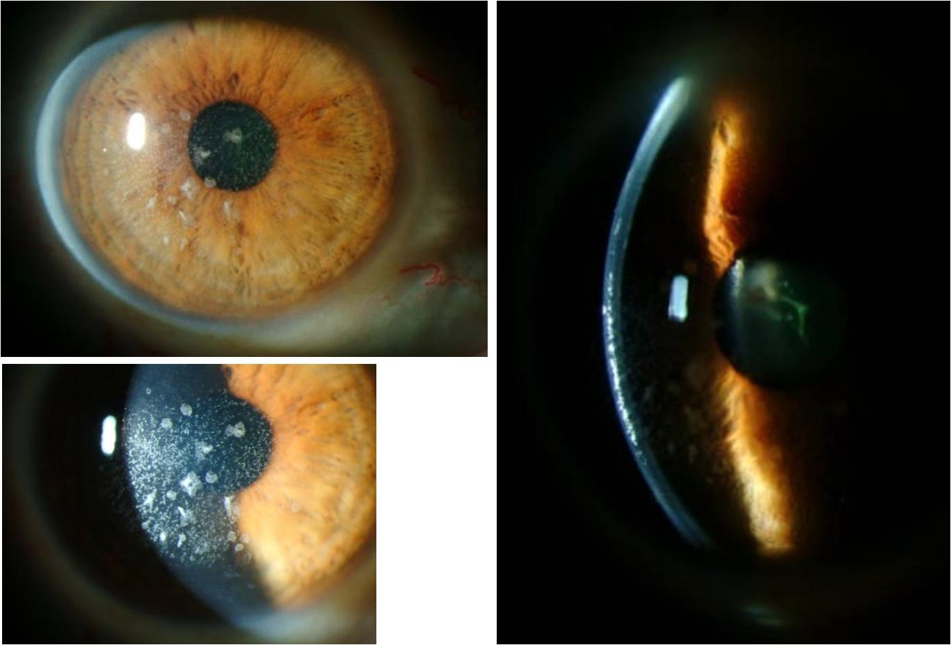 Slit Lamp Photos Of The Right Eye, Following Superficial Keratectomy And  Phototherapeutic Keratectomy (PTK
